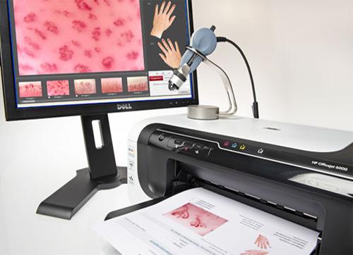 Kit VideoCap 3.0 D1 200 Reuma stazione computerizzata